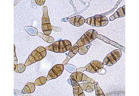 esporas hongos alergia