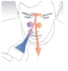 Irrigación Nasal Instrucciones